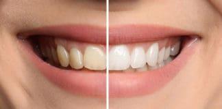 uśmiech, wybielanie zębów