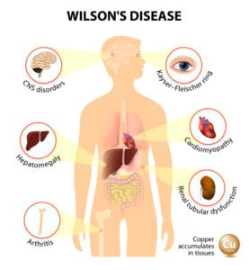 choroba wilsona infografika