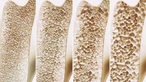 kości dotknięte osteoporozą