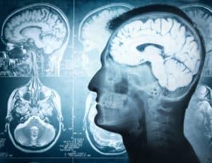 mózg człowieka, układ nerwowy